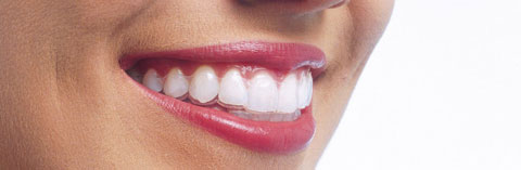 Reasons to Smile with Invisalign