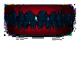 image teeth 02 - Ortodoncia Invisible: Invisalign